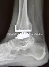 Эндопротезирование голеностопного сустава новосибирск приобретение ортопедичесих изделий тутор на локтевой сустав
